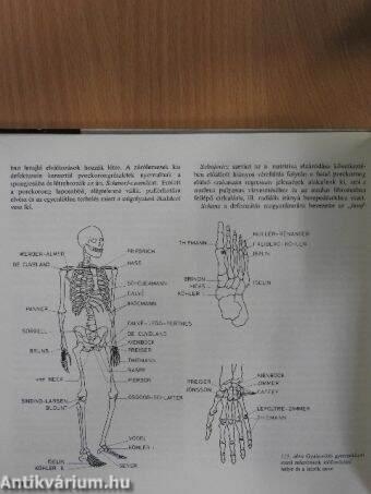Rheumatoid Arthritis   Deldunantulifurdok