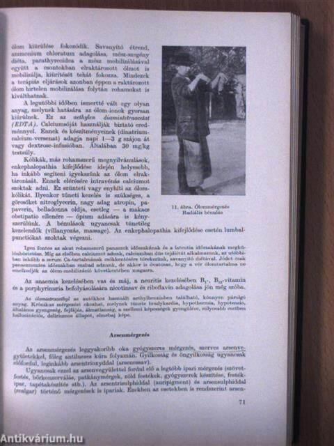 Ankylostomiasis kazaksha. Emberi ascaris fertőzés lehet - Ascaris fertőzés megelőzése