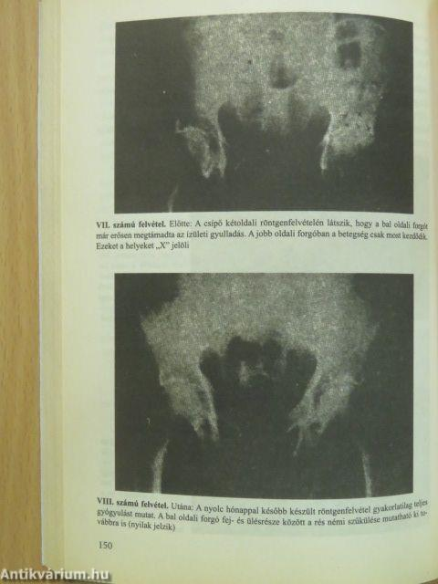 Csontkezelés a lábon - minden módon - Arthritis July